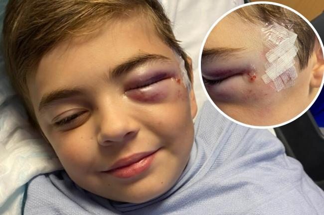 Injured - Teddy Tyrrell, 7, was attacked by a husky